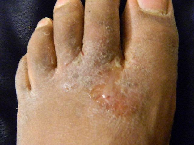 Fußpilz an den Zehen und Oberseite